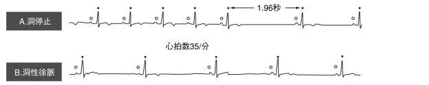 Bradycardia1