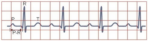 First_degree_atrioventricular_block