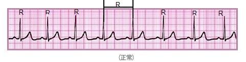 Normal_electrocardiogram