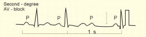 Second_degree_atrioventricular_bloc